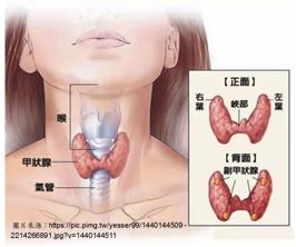亢進 甲状腺 症 機能